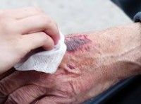 Wound Care Industry to Grow to $ 4.5 Billion by 2016